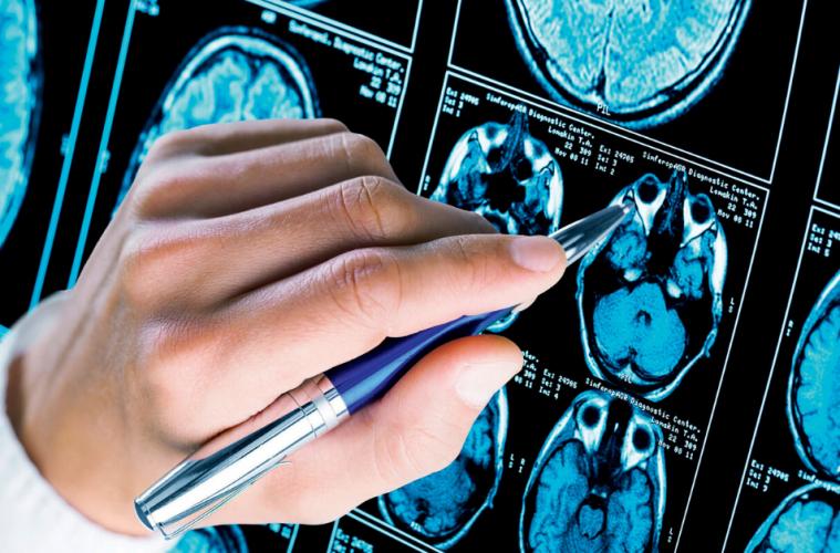 Tratamientos contra la epilepsia