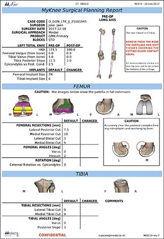 SALUD  | ¿Cuándo se debe reemplazar una prótesis de rodilla?