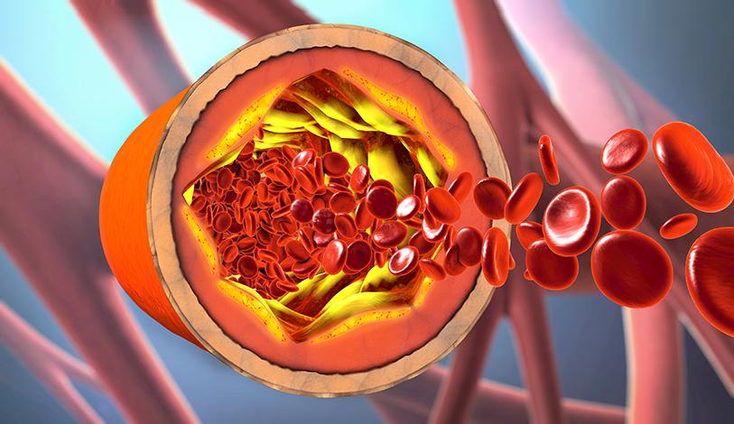 ESPECIALES LIFESTYLE SALUD  | Riesgo de una trombosis durante el embarazo