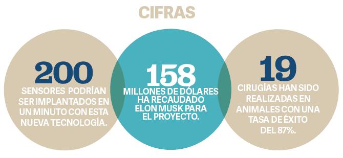 ESPECIALES  | MICROCHIP CEREBRAL