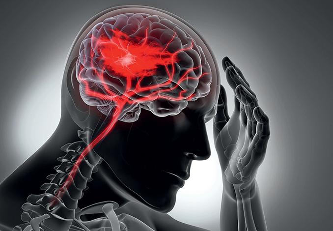 ESPECIALES LIFESTYLE SALUD  | Tratamientos contra la epilepsia